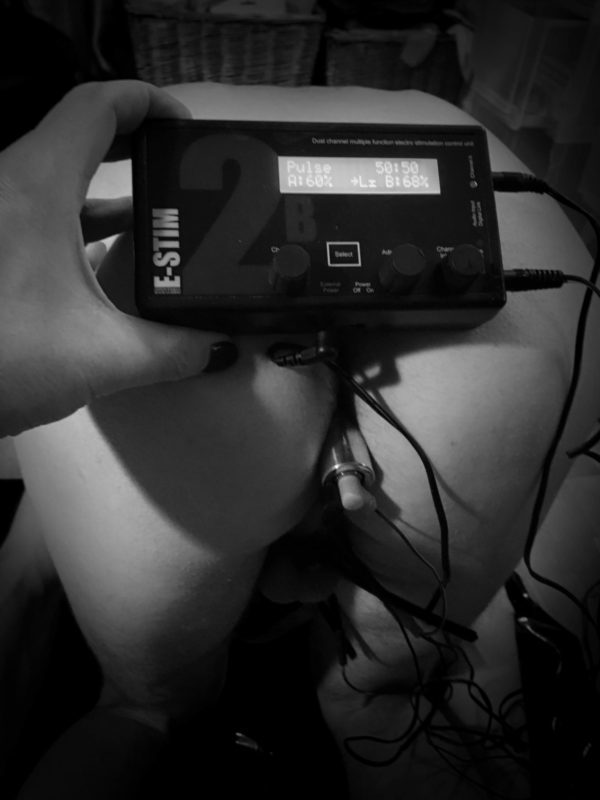 Electro Plug Anal